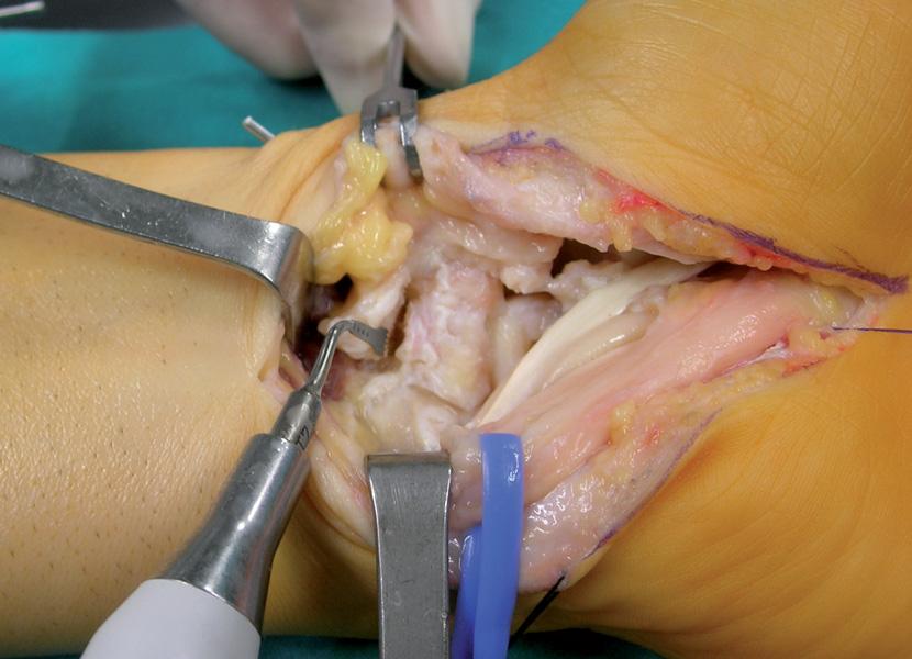 Radius Bone Grafting