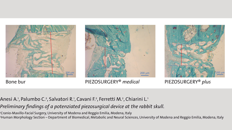 Preliminary findings of a potenziated piezosurgical device at the rabbit skull.
